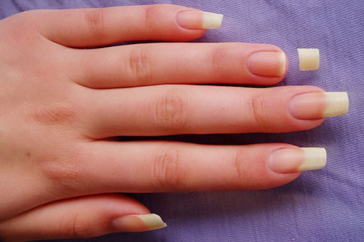 How To Take Care Of Broken Nails | Caring For Broken And Brittle Nails