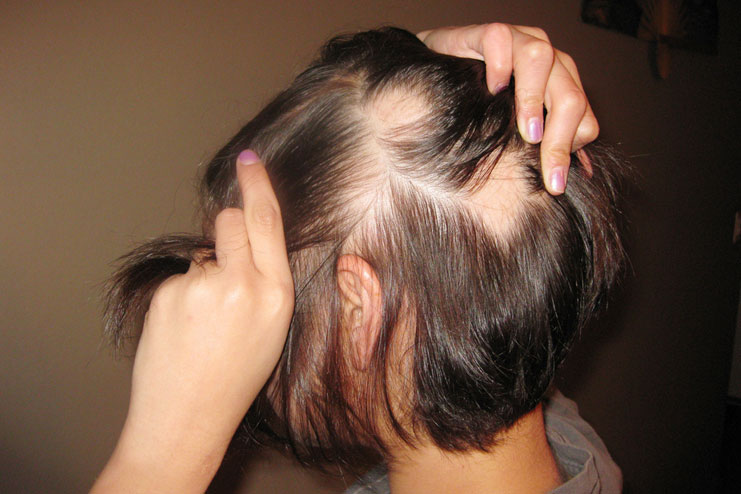 Hairstyles For Alopecia Areata : 10 natural treatment for alopecia areata hergamut.com