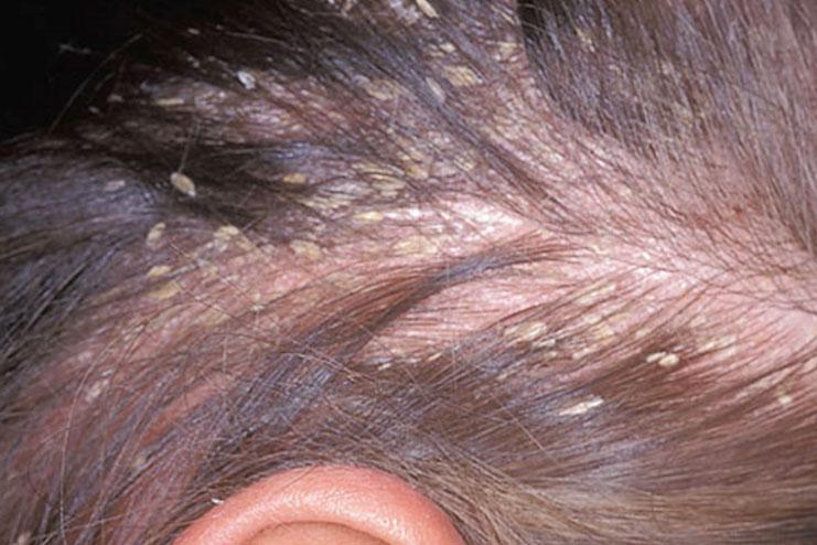 Мокнущая сыпь - дерматозы
