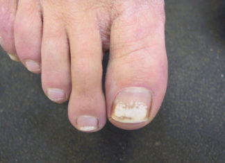 toenail infection