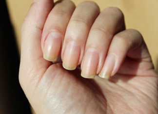 get rid of yellow nails