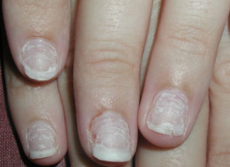 repairing damaged nails