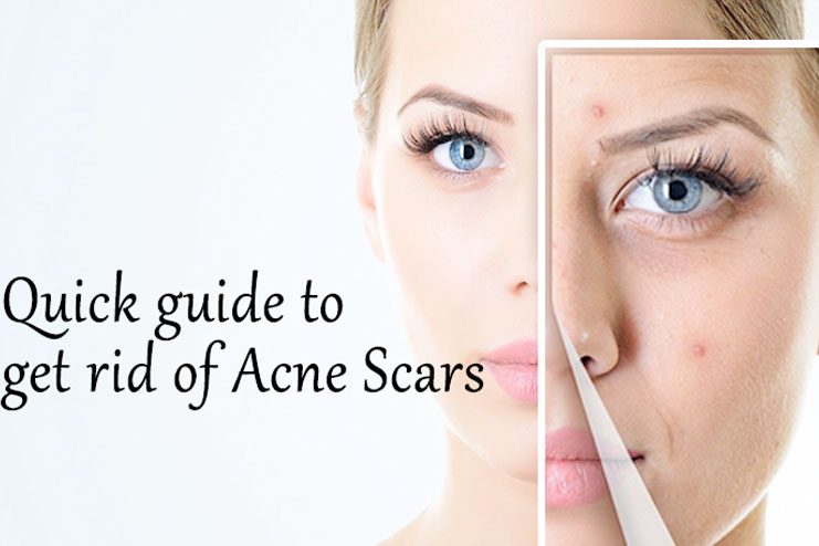 how to clear acne blemishes