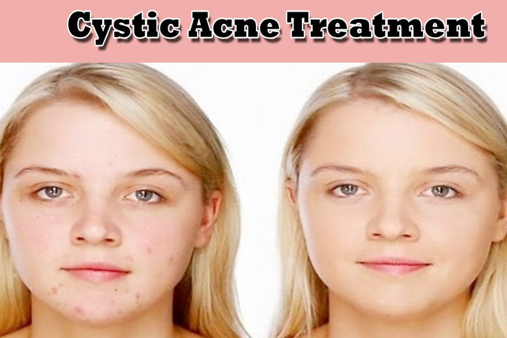 What Is Cystic Acne And How To Treat It At Home