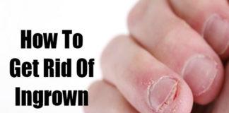 ingrown fingernails
