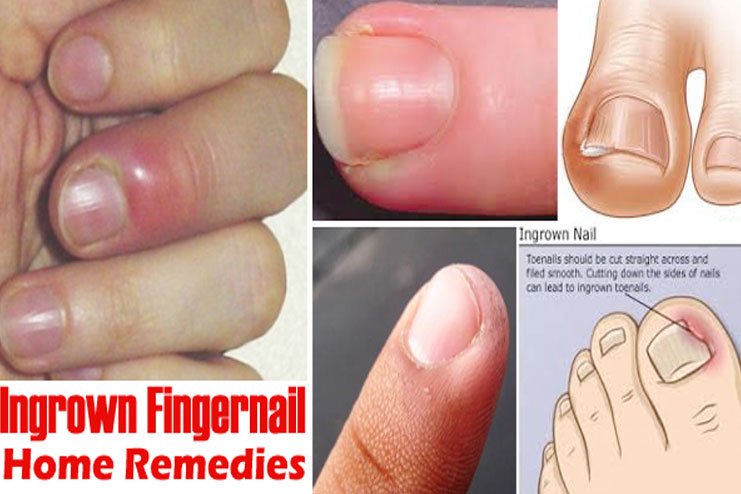 How to treat ingrown fingernails