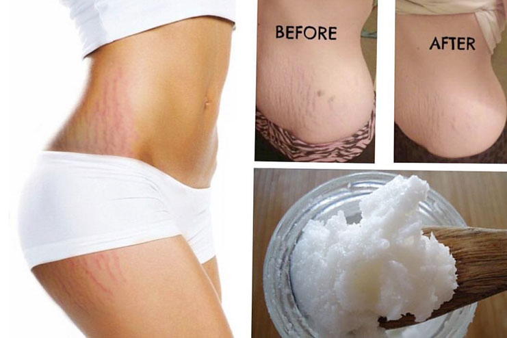 Coconut oil for stretch marks during pregnancy