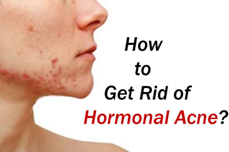 3 Ways to Get Rid of Acne - wikiHow