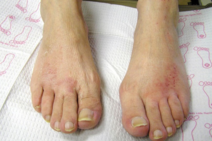How to prevent post pedicure infections