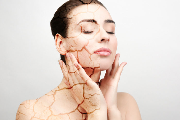 Dehydrated Skin Vs Dry Skin