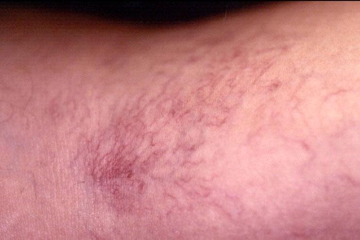 Symptoms of Spider Veins