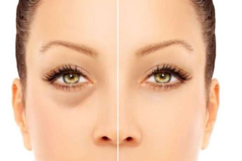 Sunken Eyes - Causes, Prevention And 20 Ways To Get Rid Of It!